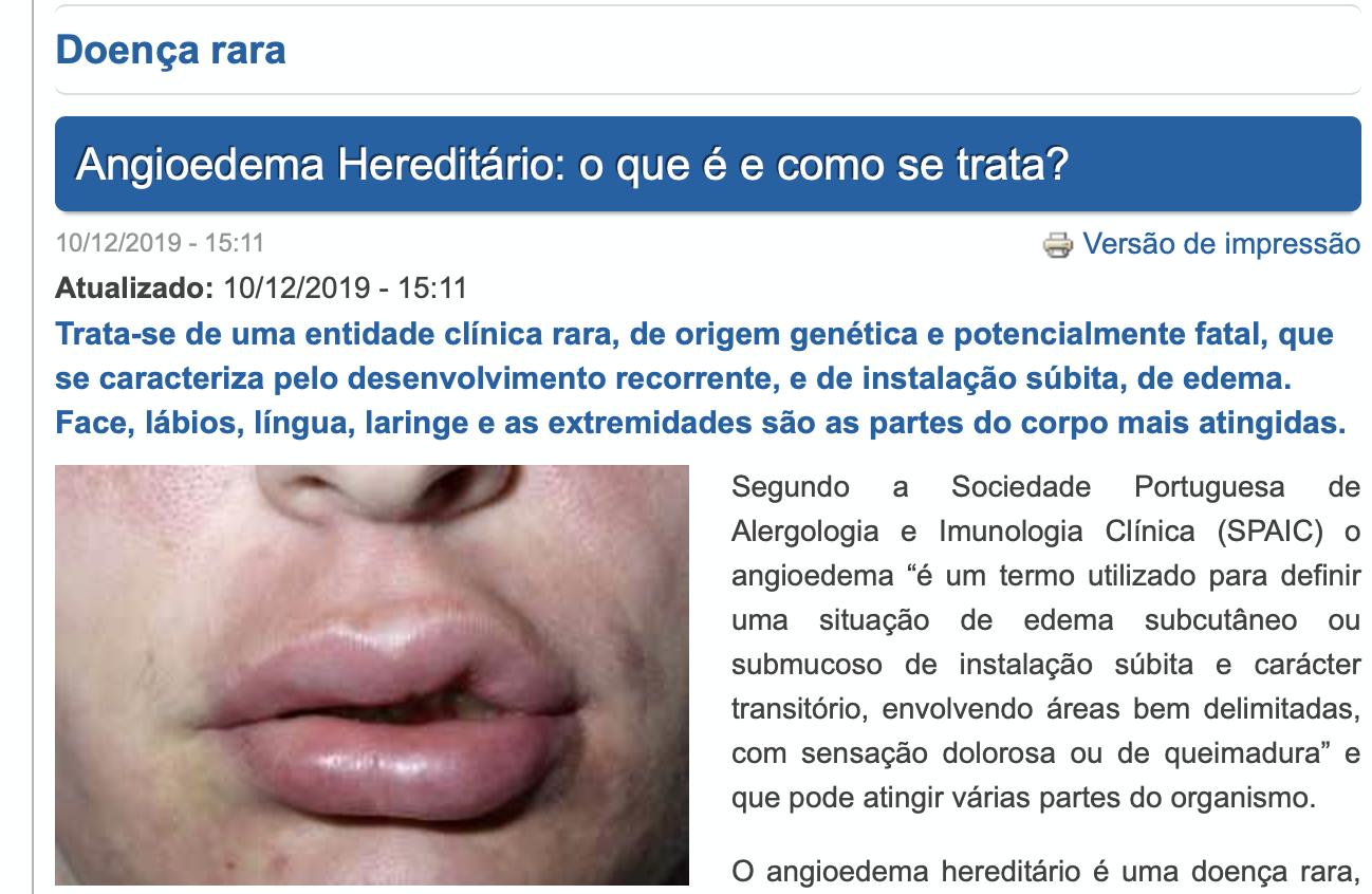 Atlas da Saúde: 10/12/19 Angioedema Hereditário - o que é e como se trata?